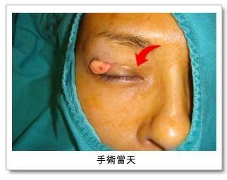 彭玉文醫師雙眼皮範例