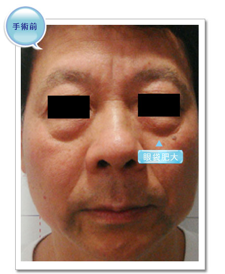 彭玉文醫師眼袋案例