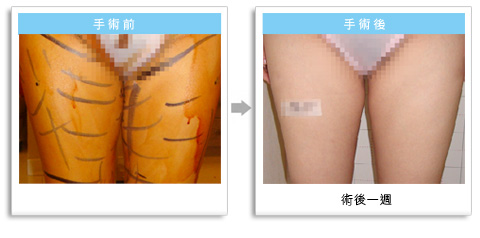 彭玉文醫師瘦大腿成功案例