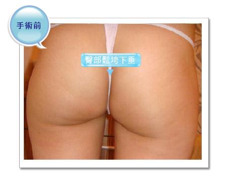 彭玉文醫師翹臀範例
