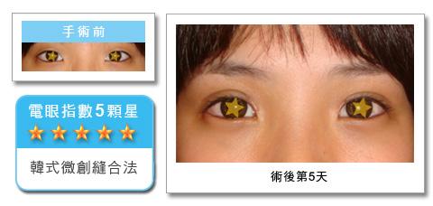 彭玉文醫師韓式釘書機雙眼皮