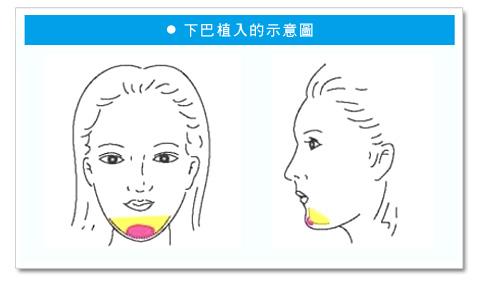 彭玉文醫師 日式微創下巴術