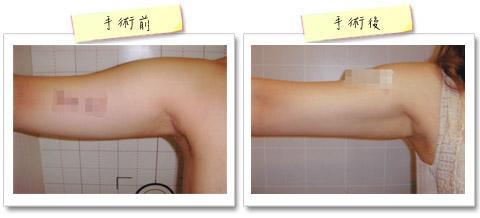 彭玉文醫師雷射溶脂瘦手臂案例
