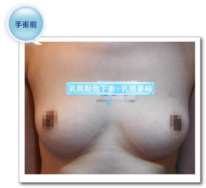 彭玉文醫師隆乳豐胸案例